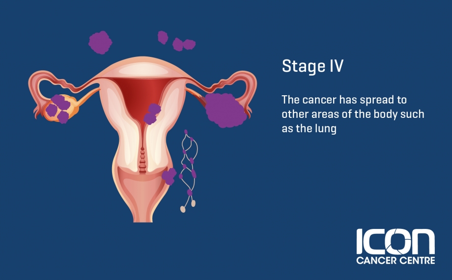 What Is Ovarian Cancer Ovarian Cancer Explained Icon Cancer Centre
