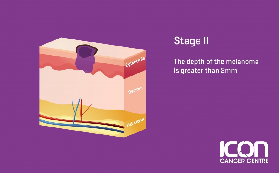 What Is Skin Cancer Skin Cancer Explained Icon Cancer Centre